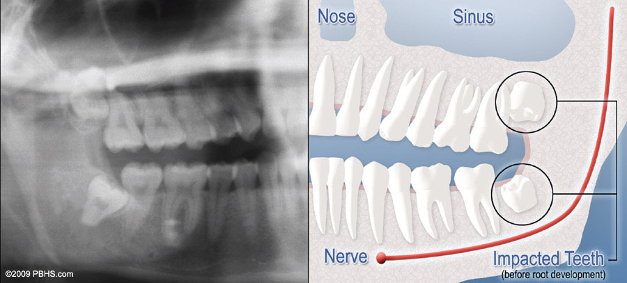 A diagram half mouth X-ray with teeth impaction and half digital graphic highlighting impacted teeth