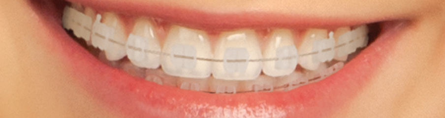 3M Clarity Clear Braces